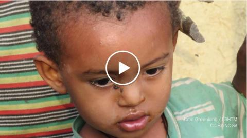 Cause And Symptoms Of Trachoma