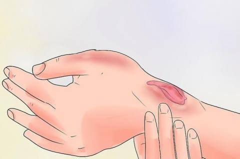 How a skin wound heals